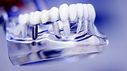 Gain More Confidence and Restore Your Smile With Dental Implants