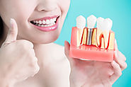 How to Properly Care for and Maintain Your New, Affordable Dental Implants