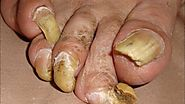 Toenail Fungus Treatment - Toenail Fungus Removal That Works Fast!