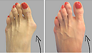 How To Get Rid Of Bunions – Health and Wellness
