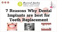 7 Reasons Why Dental Implants are Best for Teeth Replacement