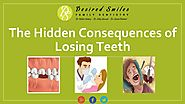 4 Hidden Consequences of Losing Teeth