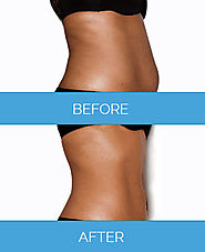 Affordable Vaser liposuction in Manchester, London, Liverpool