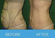 What is Liposuction Surgery?