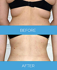 The Beautiful And Wonderful Way of Fat Reduction With Vaser Liposuction