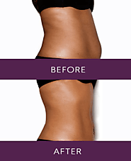 Fat Reduction with Vaser Liposuction