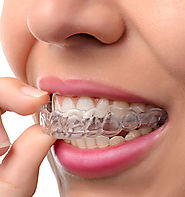 Get Invisalign Braces in Sydney