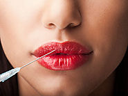 Get More Beautiful Lips With Filler Treatments