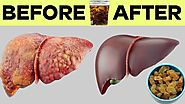 How to Make Raisin Water and Clean the Liver in Just 4 days