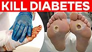 Diabetes overview: Causes, symptoms, treatment