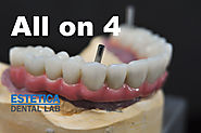 Dental Implants All on 4 (Four)| All on 4 Dental Implants Cost - Estetica Dental Lab, London, UK