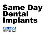 Same Day Dental Implants | Same Day Dental Implants Cost - Estetica Dental Lab, London, UK