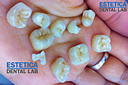 EMAX Dental Crowns | EMAX Crowns Cost -Estetica Dental Lab, London, UK
