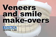 Veneers and Smile Makeovers | DSD Smile Makeovers - Estetica Dental Lab, London, UK