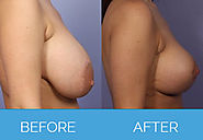 Know more about Breast Uplift Surgery or Mestopexy