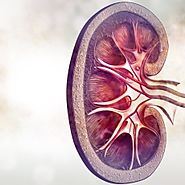 Kidney Diseases Also called: Renal disease