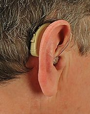 Romex Digital Hearing Amplifier R101B Review - Digital Hearing Aids Review