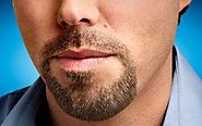 Beard Transplantation Services Turkey, Beard Transplant Services Turkey