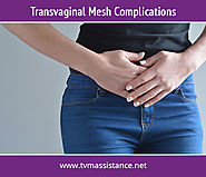 All about Mesh Complications and Consequences