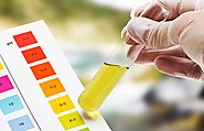 Hidden Facts about Urine Drug Tests