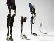 Physically Disabled Can Become More Active Using Orthotics