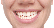 Discover How To Straighten Your Crooked Teeth Without Braces