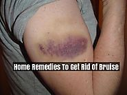 Home Remedies To Get Rid Of Bruise Faster - Bruise Treatment