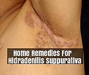 Hidradenitis Suppurativa Natural Treatment | Top 7 Home Remedies