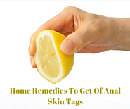 Top 8 Home Remedies For Anal Skin Tags Removal