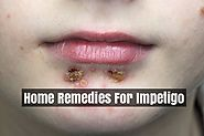 Treatment For Impetigo Infection In Children And Adults