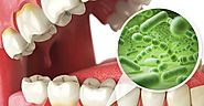 Vitamin D and Two Most Common Diseases of Teeth