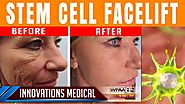 Stem Cell Facelift Before & After (50 and gets carded for ALCOHOL)