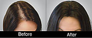 Hair Loss Treatment For Women and Hair Fall Treatment for Women.
