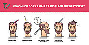 How Much Does a Hair Transplant Surgery Cost ?