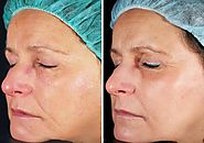 Laser Skin Tightening – Eliminate Various Skin Imperfections | Fashion Copys