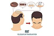 Is hair transplantation a permanent solution? - Quora