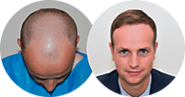 Everything you want to know about Hair Transplants | Hair Loss | Harley Street Hair Clinic
