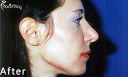 What is the Best Nose Job Before and After Testimonial in Croatia?