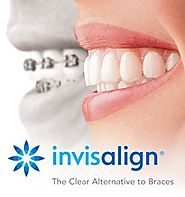 Invisalign Dentistry Assist You to Smile Confidently Again