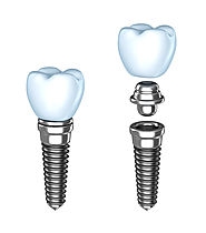 Hire Affordable Dental Implants Services