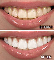 Cosmetic Teeth Whitening Services For Making A Heart Melting Smile!