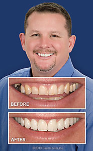 Advanced Dentistry – The best way to fix the dental troubles