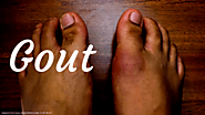Approach to inflamed joint in the ED. Gout vs septic joint, and common clinical questions