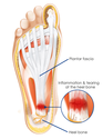 Heel Spurs and Plantar Fasciitis Treatment in Augusta GA