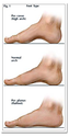 Treatment for Foot Problems in Augusta, GA
