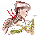 Brachial Plexus Stingers: also known as stingers or burners