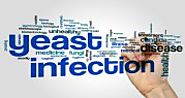What are the Misconceptions about Yeast Infection? What are the Real Facts?