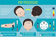 PRP Therapy Treatment - Rejuvenate Hair Transplant's Fotothing