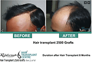 Best Hair Transplant Centre in India