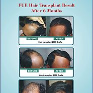 Hair Transplant Natural Results - Rejuveate Centre